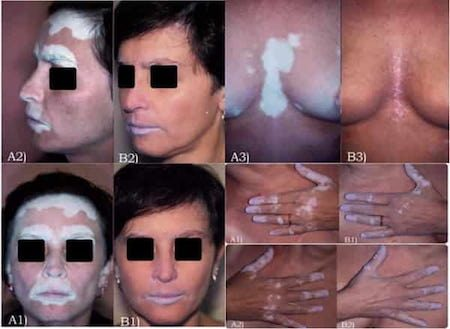 Pigmarized-for-Vitiligo-Before-and-After